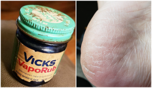 11 Ways To Use VapoRub That Aren't What It Was Made For