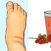 11 Home Remedies to Reduce Water Retention